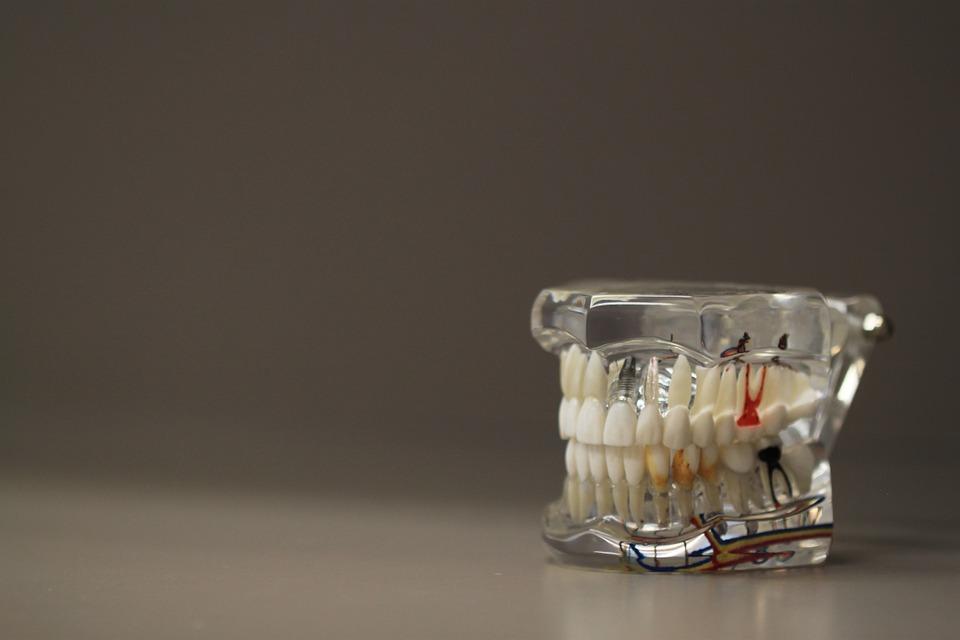 Dentistry Pixabay Public Domain